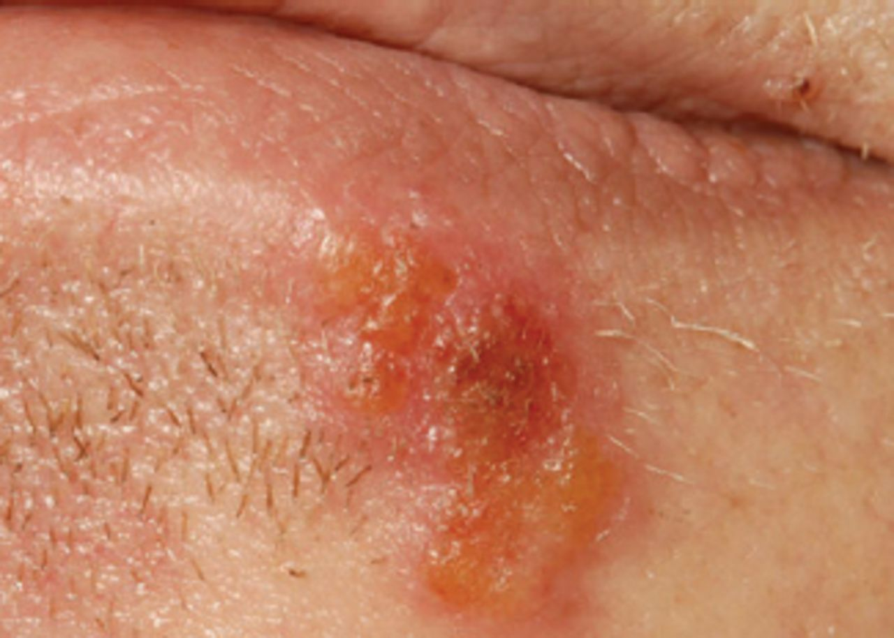 Primary Syphilis Rash Figure 1