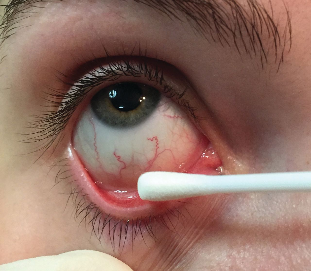 Gonococcal conjunctivitis: the importance of good-quality