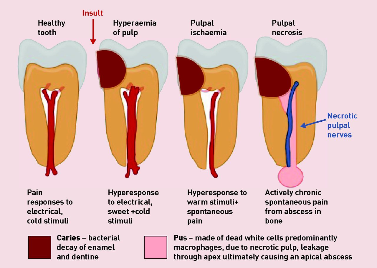 Understanding and managing dental and orofacial pain in