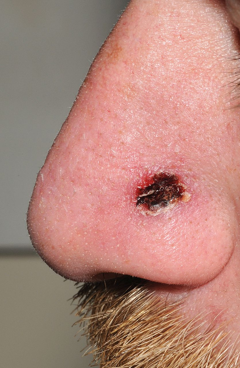 Syphilis on the face in primary care: a rare sign of an increasingly ...