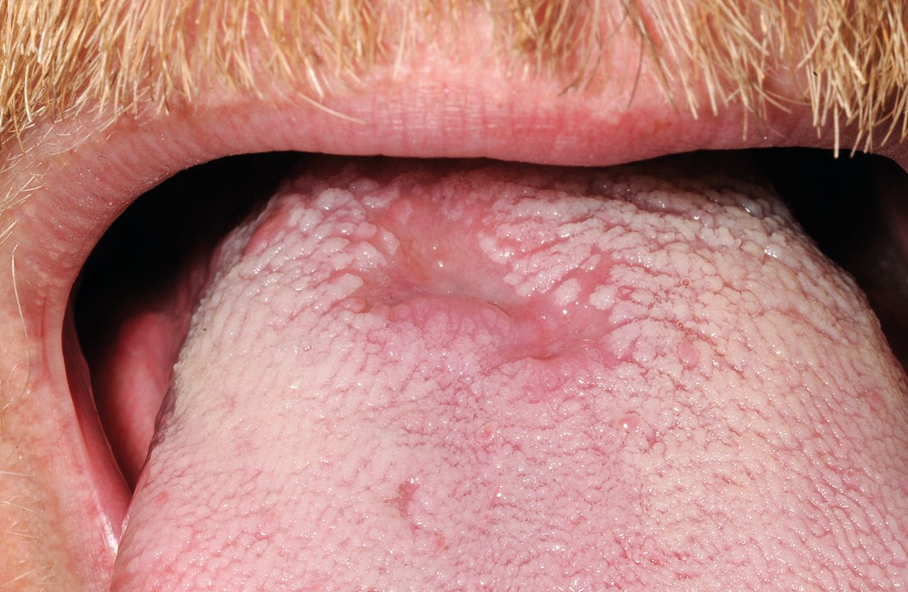 Syphilis On The Face In Primary Care A Rare Sign Of An -8491