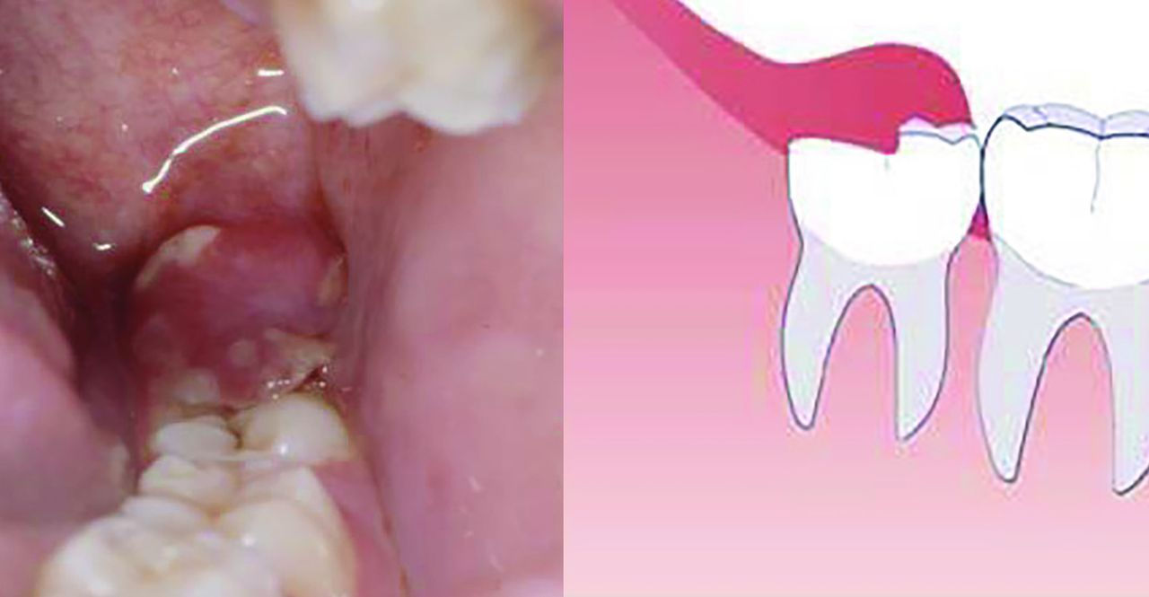 Problems with erupting wisdom teeth: signs, symptoms, and