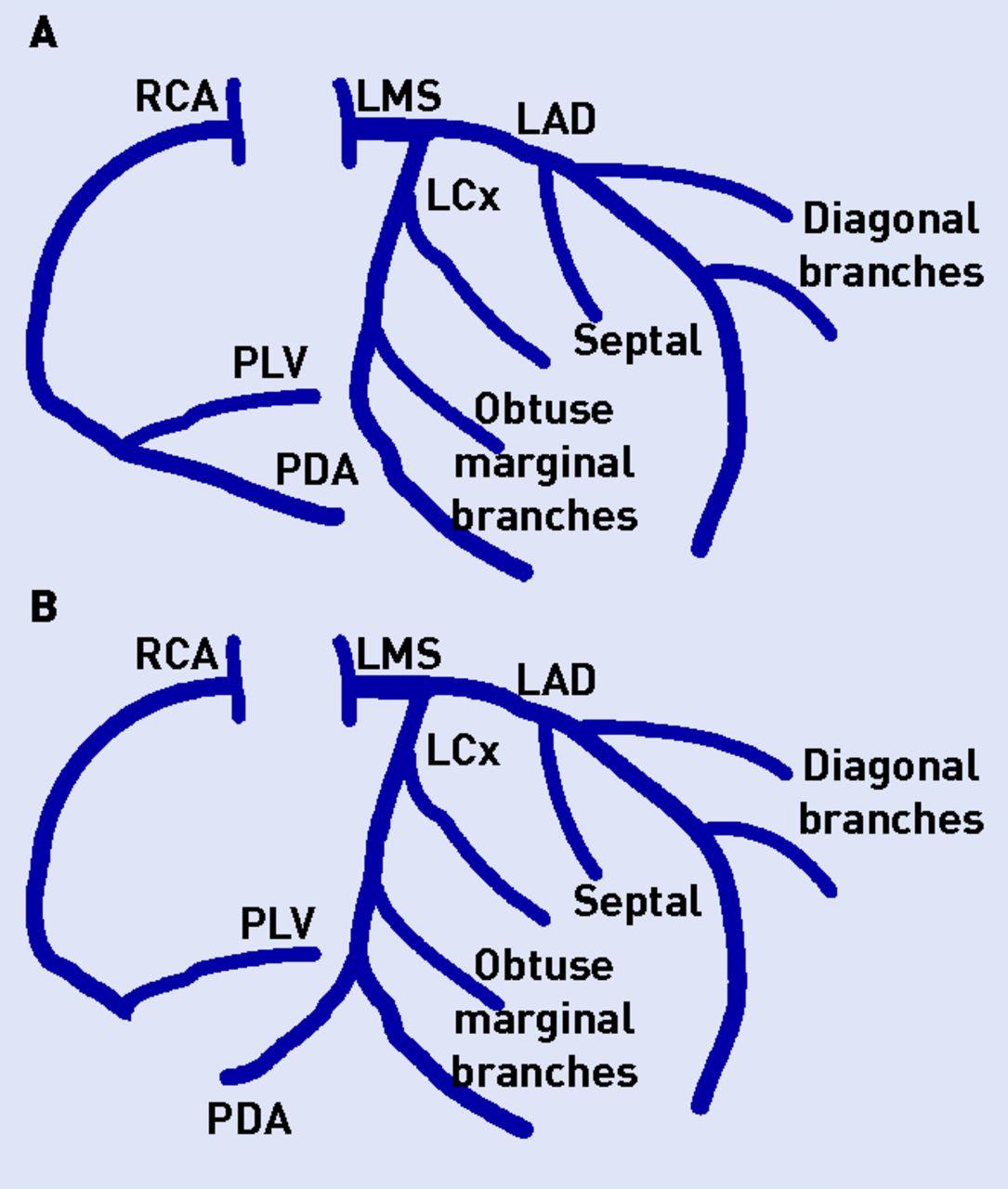 Interpretation of cardiac catheterisation reports: a guide