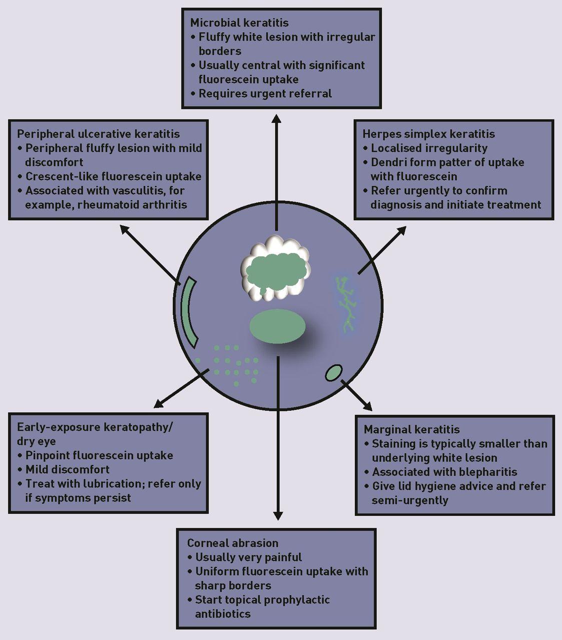 corneal ulcers in general practice british journal of general practice Indolent Corneal Ulcer Diagram