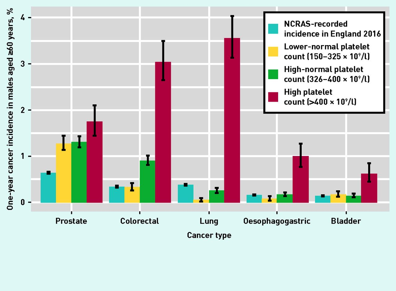 Cancer Incidence Following A High Normal Platelet Count Cohort Study Using Electronic Healthcare Records From English Primary Care British Journal Of General Practice