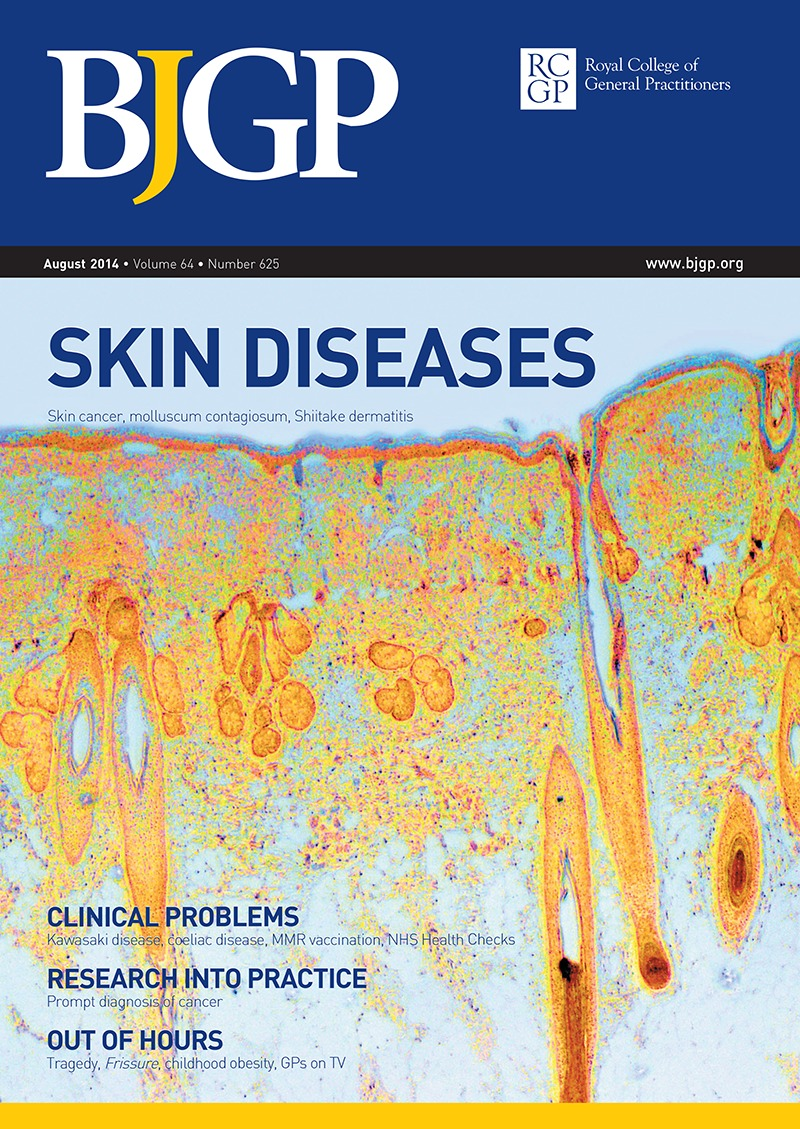 Don't miss shiitake dermatitis: a case report | British Journal of